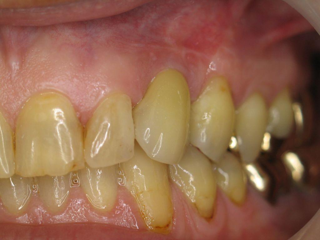 Seitlich versetzte Aufnahme. Die Implantatkrone integriert sich exzellent in die natürliche Zahnreihe und ist kaum als künstliche Krone erkennbar.