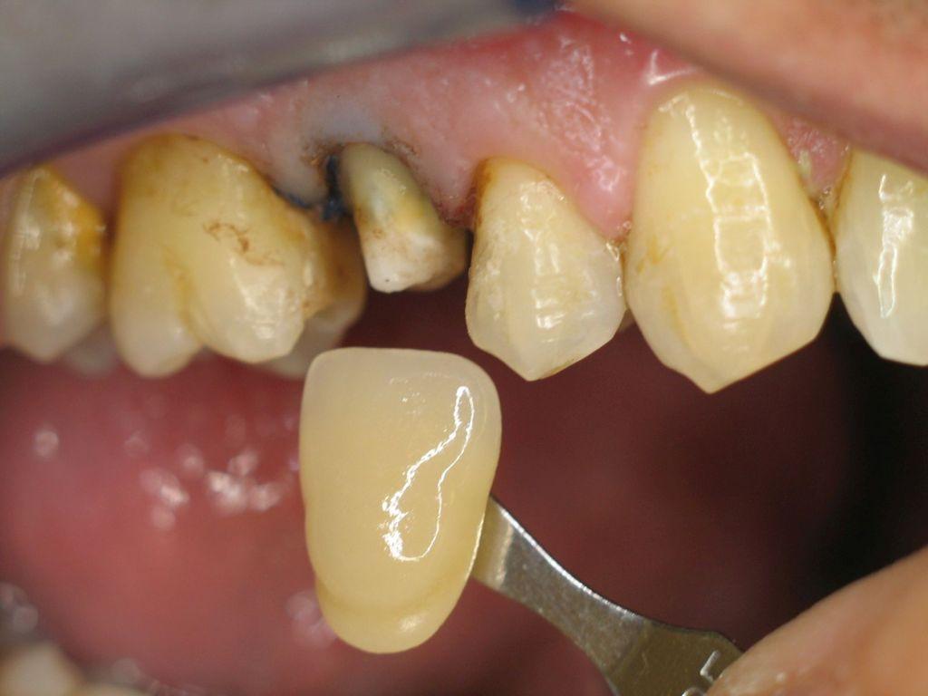 Farbauswahl des Zahntechnikermeisters vom Nachbarzahn eines beschliffenen Zahnstumpfes.