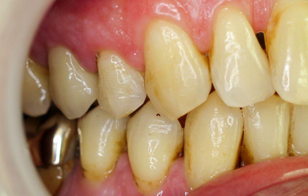 Die gefertigte Krone integriert sich tadellos in die Zahnreihe.